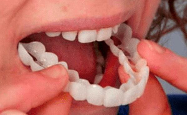 smile ready copertura dentale realistica